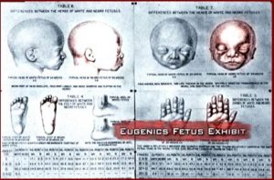 eugenics-fetus